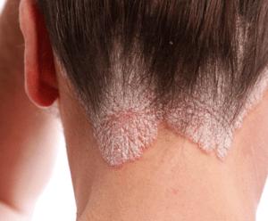 Saç Diplerindeki Sedef İçin Kür – Prof. Saraçoğlu ile Beden Sağlığı